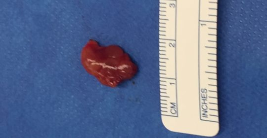 Parathyroid adenoma… description and PHOTO