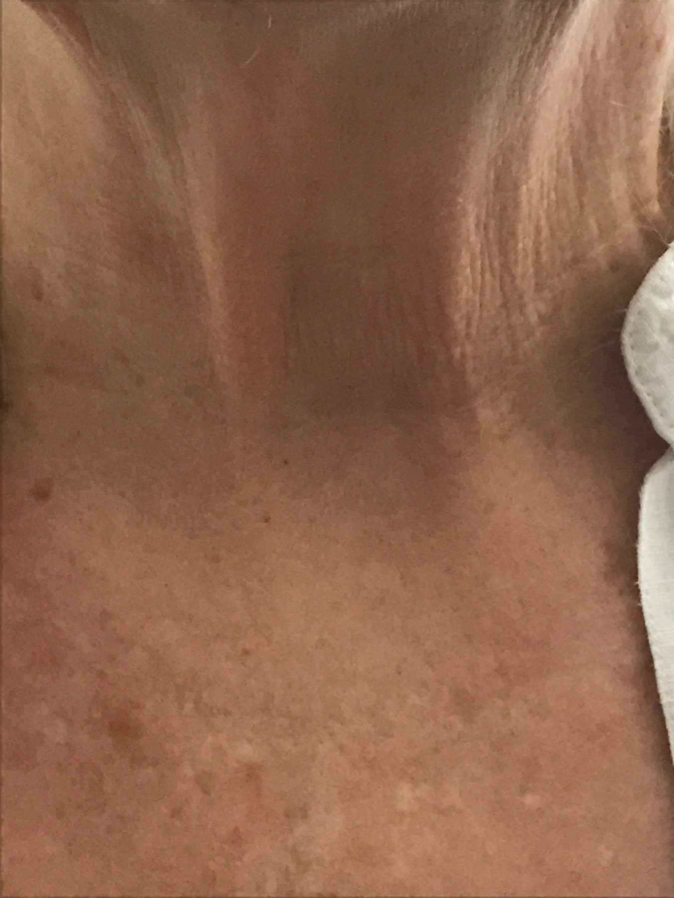 Post Operative Incisions Scars Gallery Austin Thyroid Surgeons
