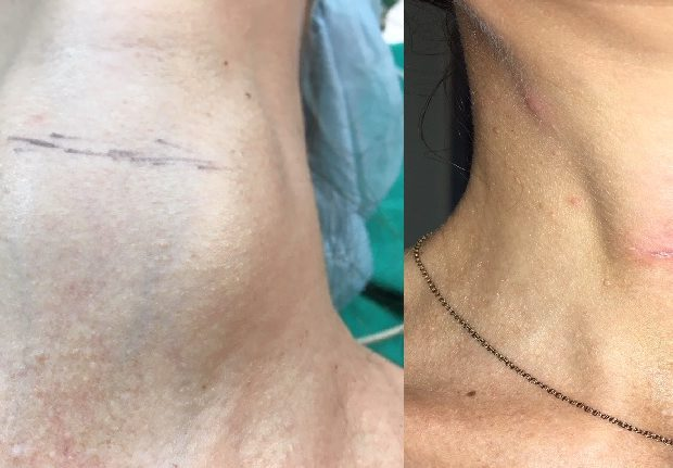 neck incision
