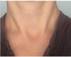 neck scar