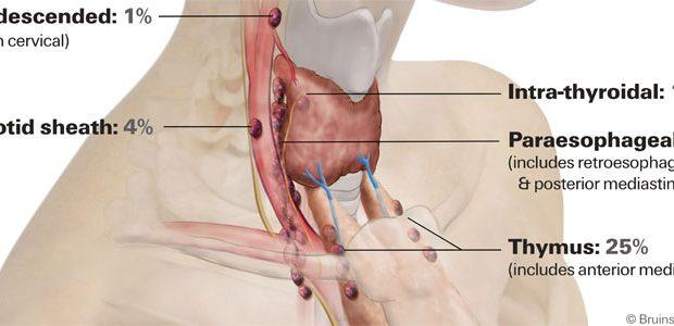 re-do-parathyroid-surgery